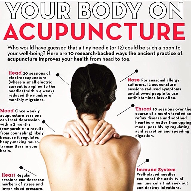 Your Body On Acupuncture — Desert Springs Acupuncture